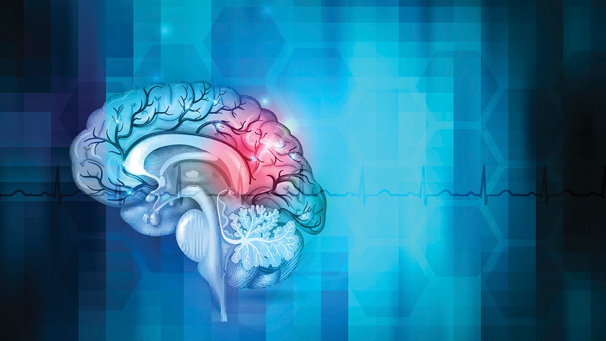 stroke-prevention-thrombolytic-therapy-and-rehab