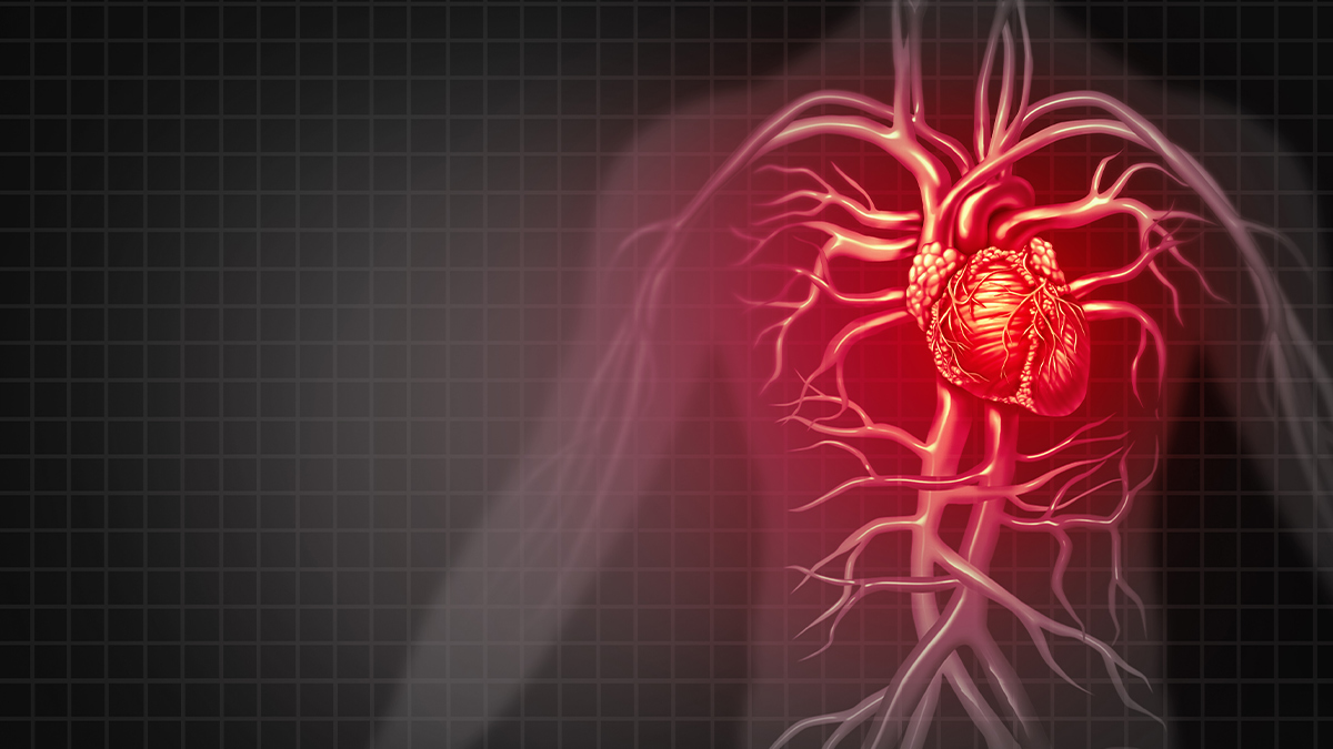 Nursing Continuing Education Course For Acute Myocardial
